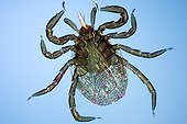 Close up of a sheep tick female under the microscope  ; Enlargement x 50. <br><br>