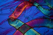 Tracheum of Scolopendra under microscope ; Lighting in polarized light with blade compensatory gypsum, magnification x 50.