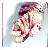 Dried blood on glove & hand of student at the end of autopsy