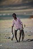 El Molo child suffering from Rickets Lake Turkana Kenya ; Because of a diet consisting primarily of fish, the El Molo children suffer from vitamin D deficiency, which develops into the nutritional disease causing deformities such as bowlegs or knocknees.