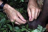 Guinea worm (Dracunculus medinensis), Benin.