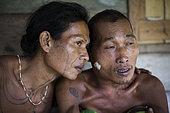 Amantari, 39, shaman, having just applied crushed bamboo shoot acting as anti pain to his patient, Pulau Siberut, Sumatra, Indonesia