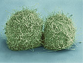 Scanning electron micrograph of just-divided HeLa cells. Zeiss Merlin HR-SEM.