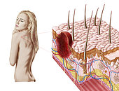 Illustration of an atypical growth on the skin that could be a warning sign of skin cancer. Sudden change in the appearance, shape, color, size, or texture of an existing mole or pigmented area that does not reduce or heal within 4 weeks are common signals of skin cancer.