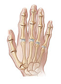 Hand showing osteoarthritic joints.