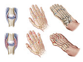 Detail of inflammed joints. Normal (top) vs. psoriatic hands and feet joints (bottom).
