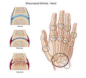 Stages of rheumatoid arthritis on hand, with highlight of joints involved.