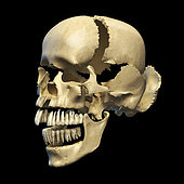Perspective view of human skull with parts exploded.